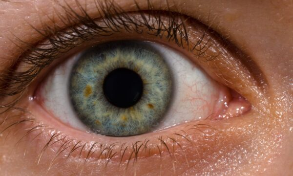 Letters to the editor: Fighting Blindness